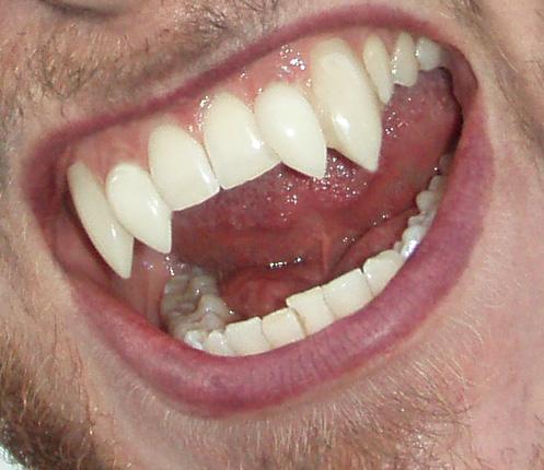 Werewolf teeth